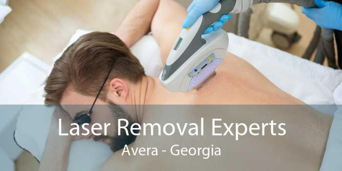 Laser Removal Experts Avera - Georgia