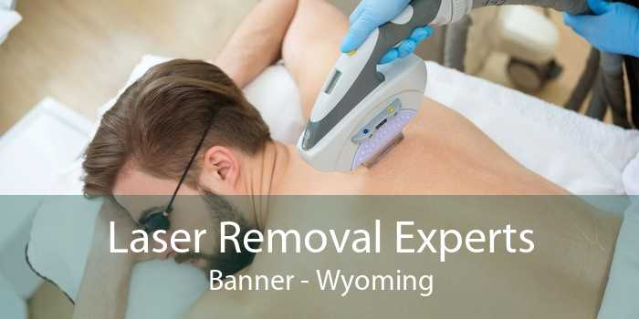 Laser Removal Experts Banner - Wyoming