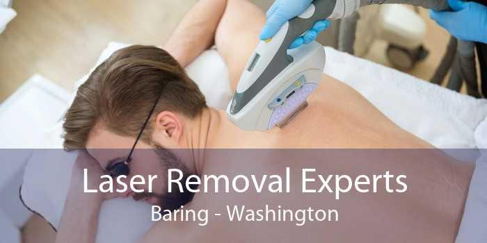 Laser Removal Experts Baring - Washington