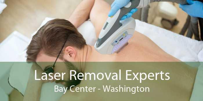 Laser Removal Experts Bay Center - Washington