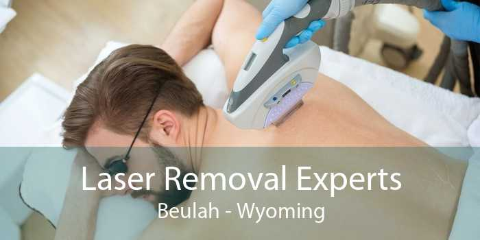 Laser Removal Experts Beulah - Wyoming