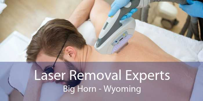 Laser Removal Experts Big Horn - Wyoming