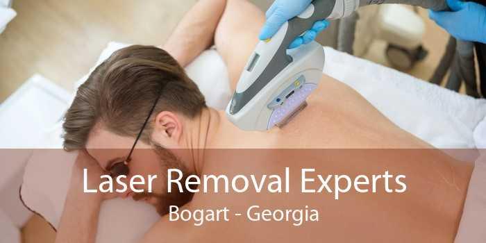 Laser Removal Experts Bogart - Georgia