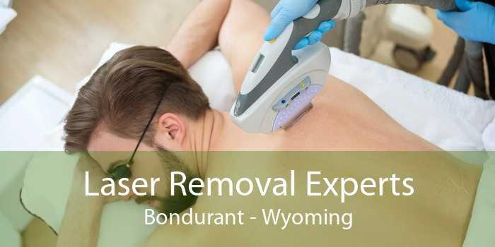 Laser Removal Experts Bondurant - Wyoming