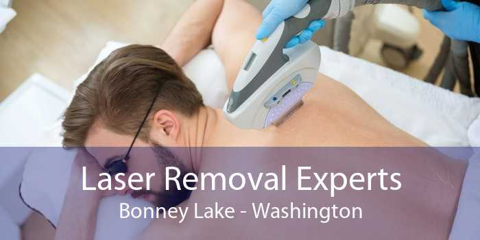 Laser Removal Experts Bonney Lake - Washington