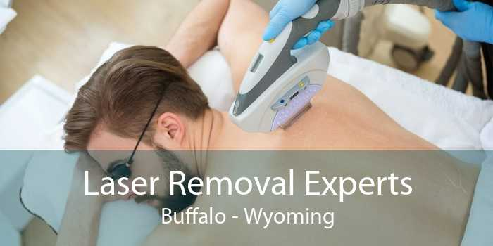 Laser Removal Experts Buffalo - Wyoming