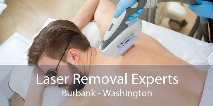 Laser Removal Experts Burbank - Washington