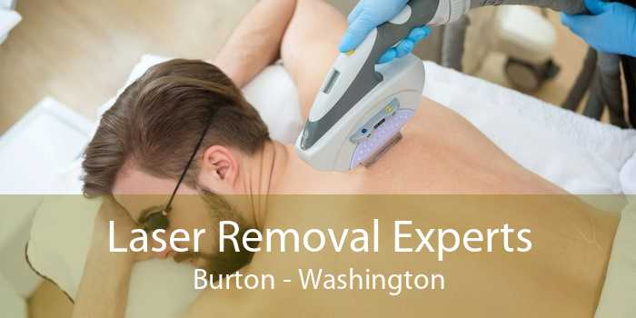 Laser Removal Experts Burton - Washington