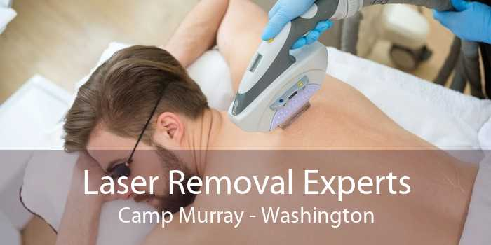 Laser Removal Experts Camp Murray - Washington