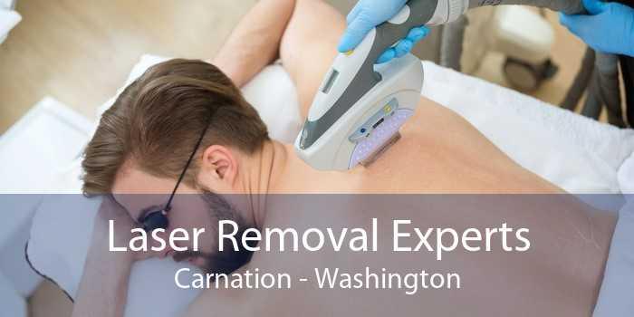 Laser Removal Experts Carnation - Washington