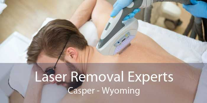 Laser Removal Experts Casper - Wyoming