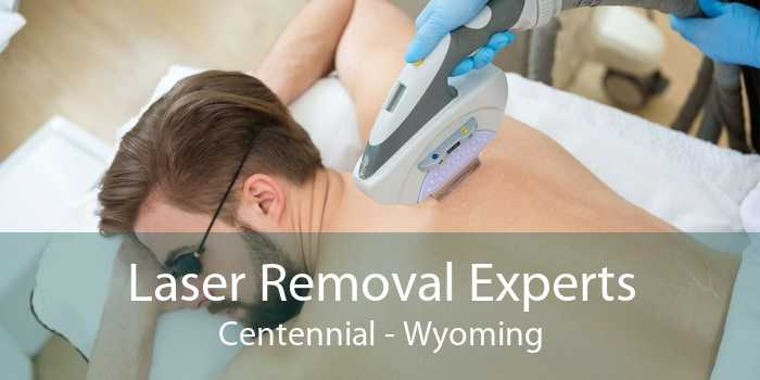Laser Removal Experts Centennial - Wyoming