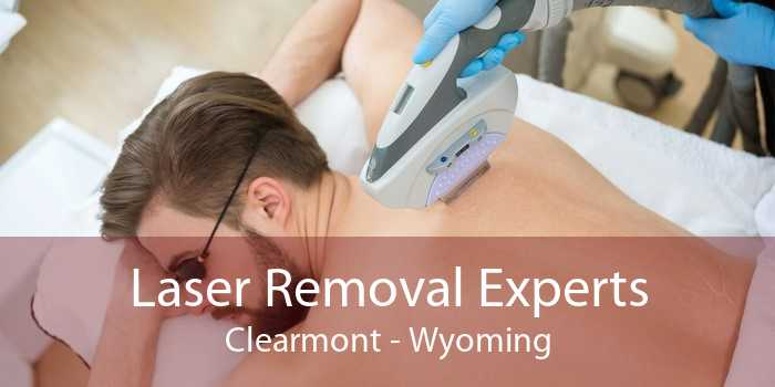 Laser Removal Experts Clearmont - Wyoming