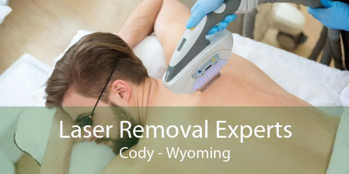 Laser Removal Experts Cody - Wyoming