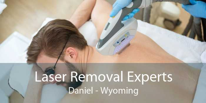 Laser Removal Experts Daniel - Wyoming