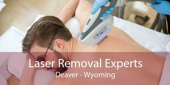 Laser Removal Experts Deaver - Wyoming