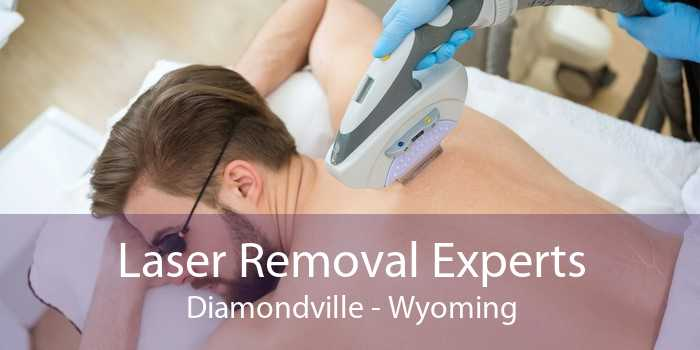 Laser Removal Experts Diamondville - Wyoming