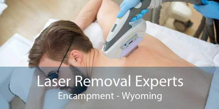 Laser Removal Experts Encampment - Wyoming