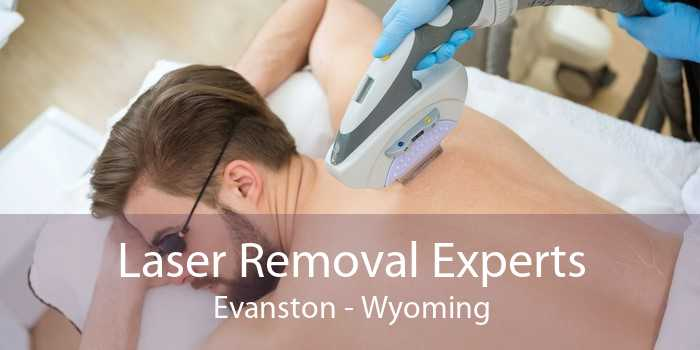 Laser Removal Experts Evanston - Wyoming