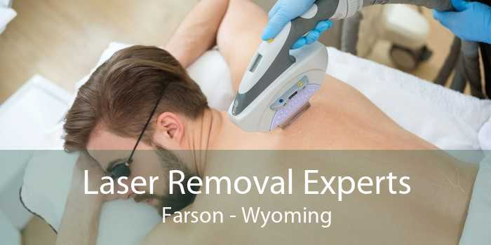 Laser Removal Experts Farson - Wyoming