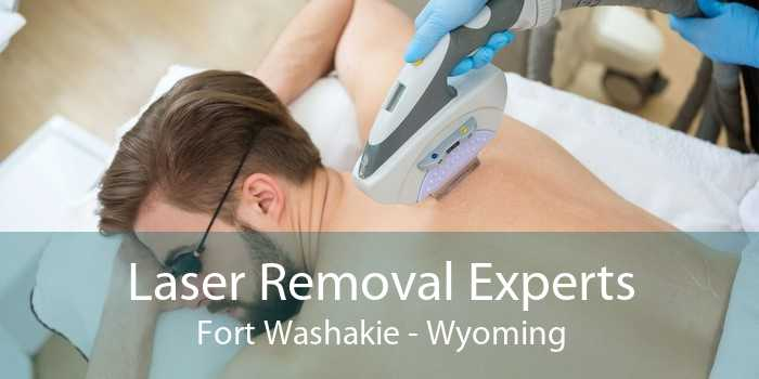 Laser Removal Experts Fort Washakie - Wyoming