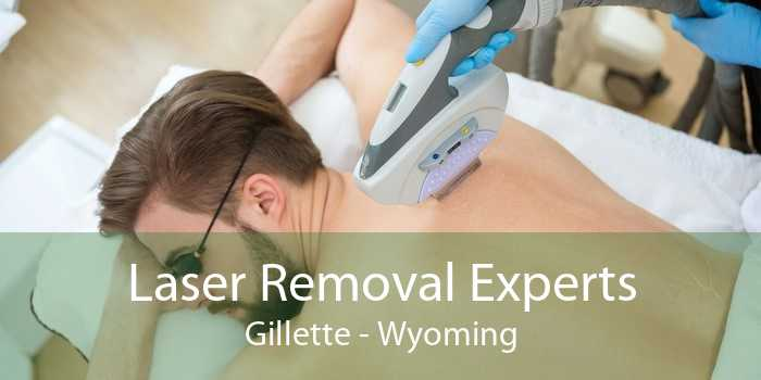 Laser Removal Experts Gillette - Wyoming