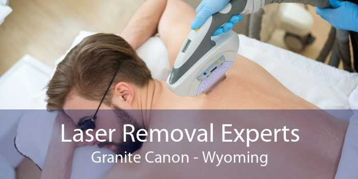 Laser Removal Experts Granite Canon - Wyoming
