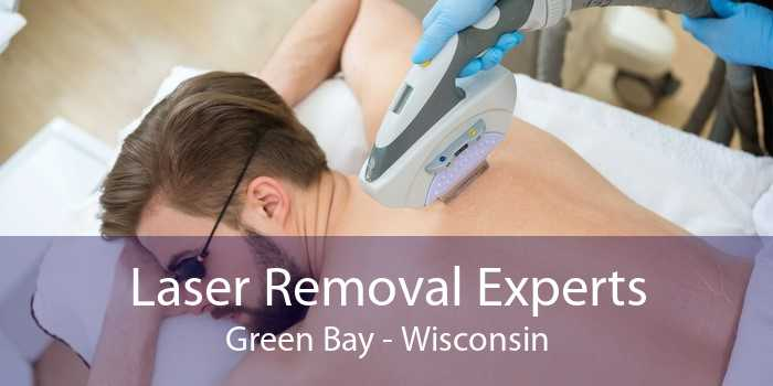 Laser Removal Experts Green Bay - Wisconsin