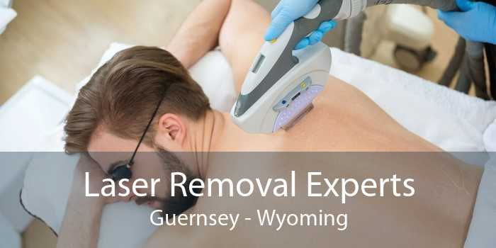 Laser Removal Experts Guernsey - Wyoming