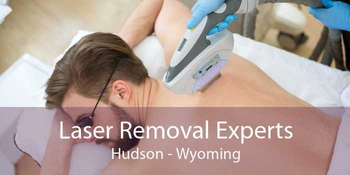 Laser Removal Experts Hudson - Wyoming