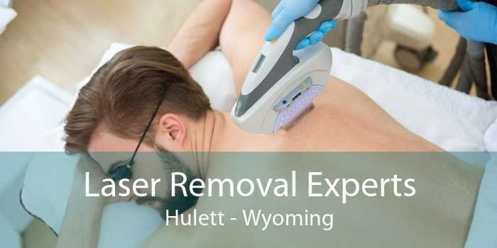 Laser Removal Experts Hulett - Wyoming