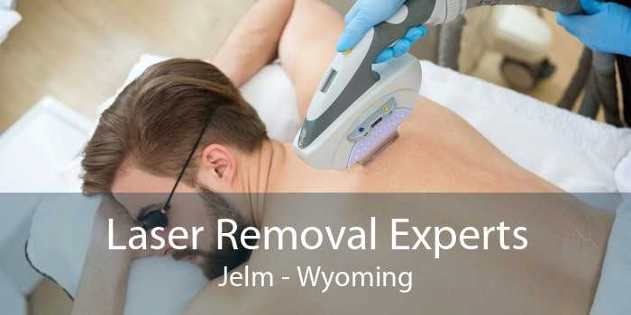 Laser Removal Experts Jelm - Wyoming