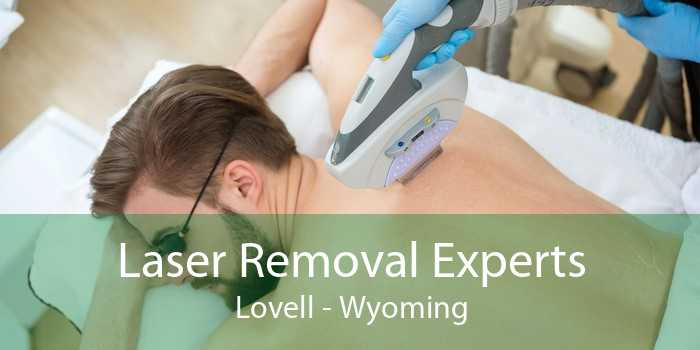 Laser Removal Experts Lovell - Wyoming