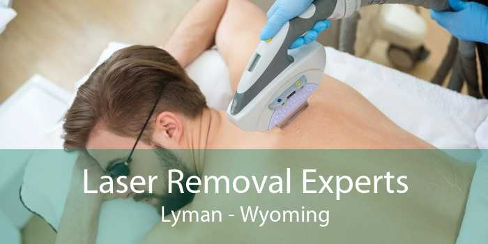 Laser Removal Experts Lyman - Wyoming