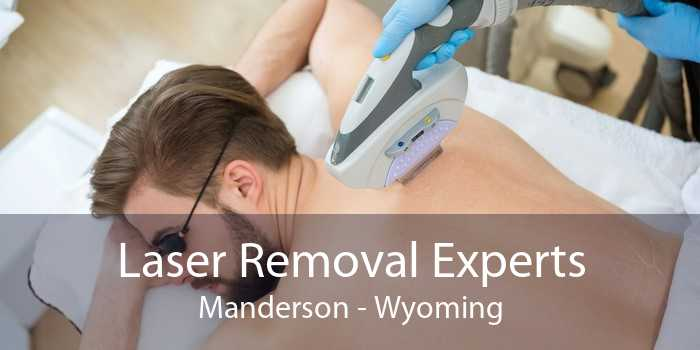 Laser Removal Experts Manderson - Wyoming