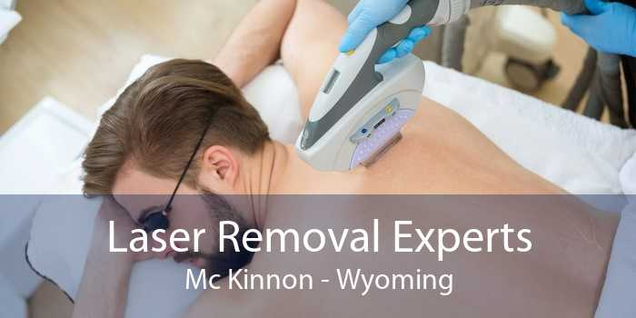 Laser Removal Experts Mc Kinnon - Wyoming