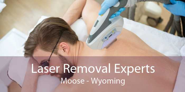 Laser Removal Experts Moose - Wyoming