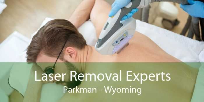 Laser Removal Experts Parkman - Wyoming