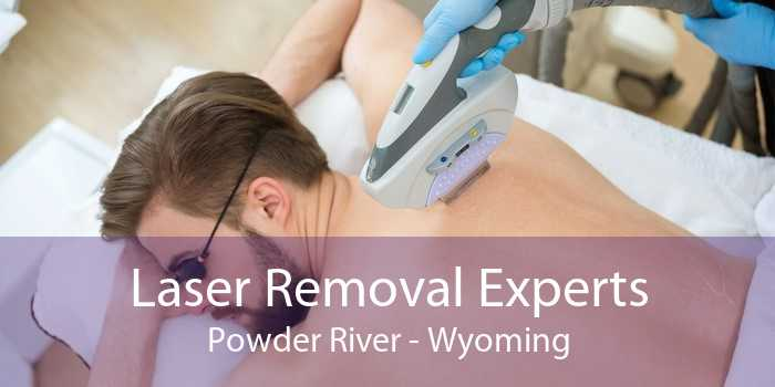 Laser Removal Experts Powder River - Wyoming
