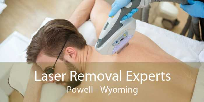 Laser Removal Experts Powell - Wyoming
