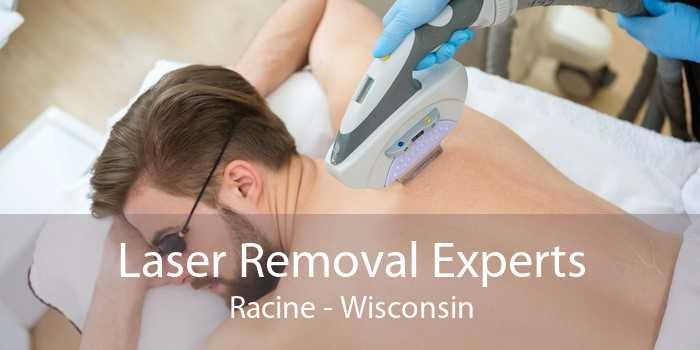 Laser Removal Experts Racine - Wisconsin