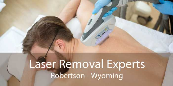Laser Removal Experts Robertson - Wyoming