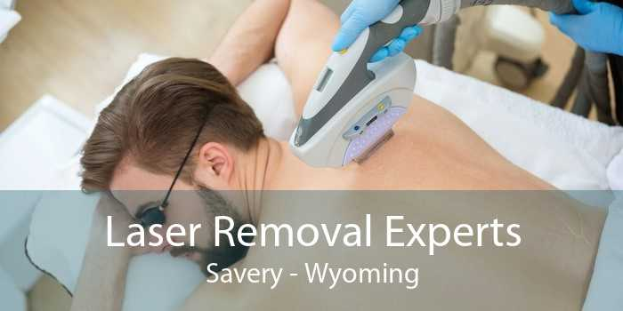 Laser Removal Experts Savery - Wyoming