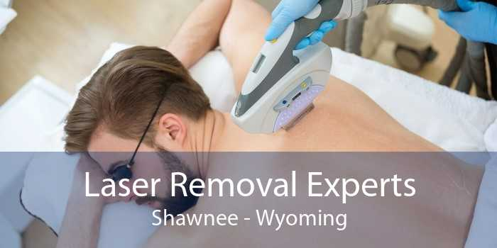 Laser Removal Experts Shawnee - Wyoming
