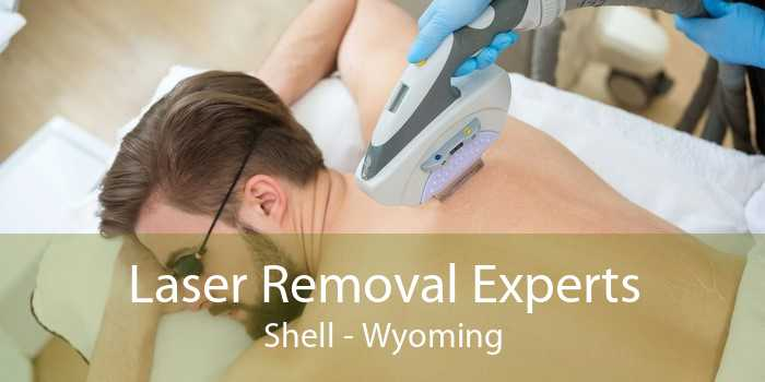 Laser Removal Experts Shell - Wyoming