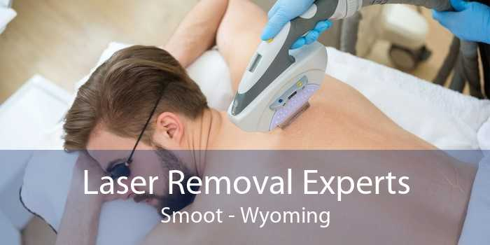 Laser Removal Experts Smoot - Wyoming