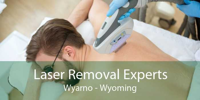 Laser Removal Experts Wyarno - Wyoming