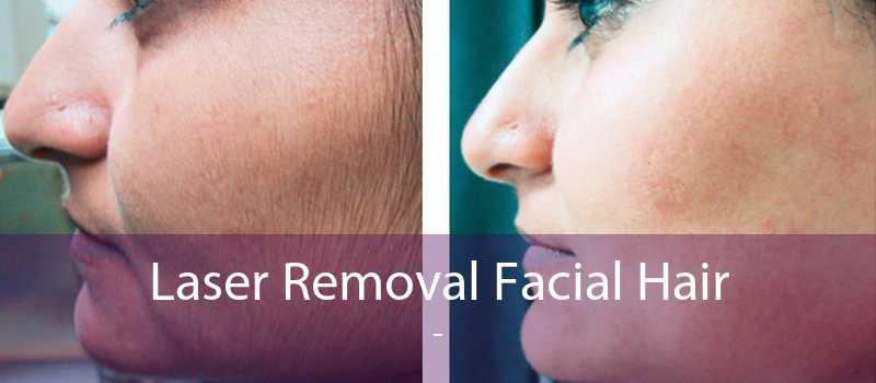Laser Removal Facial Hair
