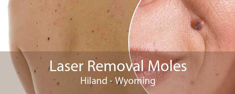Laser Removal Moles Hiland - Wyoming
