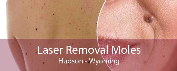 Laser Removal Moles Hudson - Wyoming